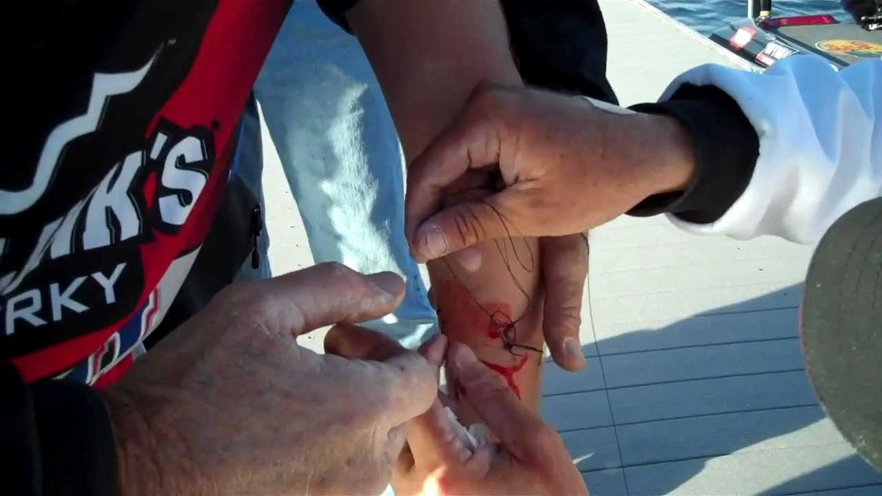 Klein vandam remove treble hooks from cameraman 39 s arm for Fishing hook accidents