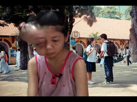 Nổi Đau Của Nữ Sinh Nghèo Trường Marie Curie Bị Khối U