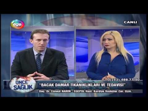 Bacak Damar Tıkanıkları Ve Tedavisi- 08.02.2017 Ege TV