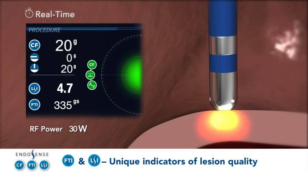 TactiCath™ Quartz Contact Force Ablation Catheter