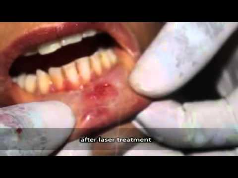Painless Dental Laser treatment for Removal of Tongue Fibroma