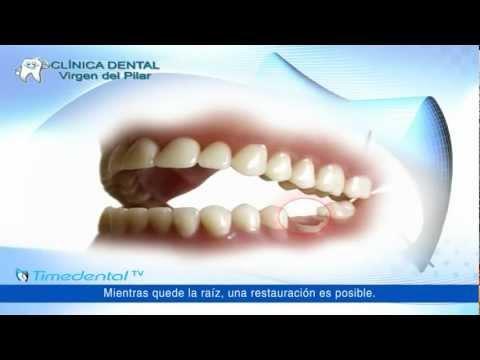 ¿Qué es la prótesis dental fija? por Clínica Virgen del Pilar