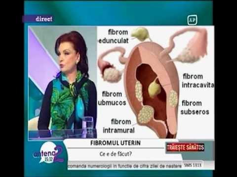 DR. ZORELA SGARBURA -  Fibromul uterin-noutati (1)