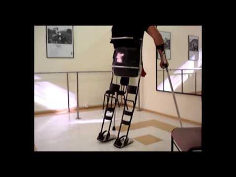Órtese de reciprocação adaptada em paciente com desarticulação bilateral de quadril e cotovelo