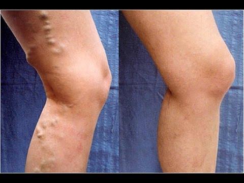 علاج دوالي الساقين بطرق طبيعية