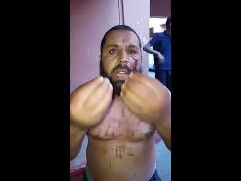 شرطي يرسل مواطن للمستعجلات بضربه بالأصفاد على وجهه