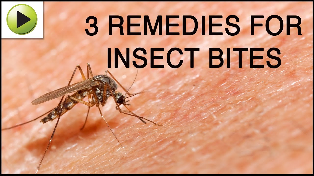 Insect Bites Natural Ayurvedic Home Remedies Youtube