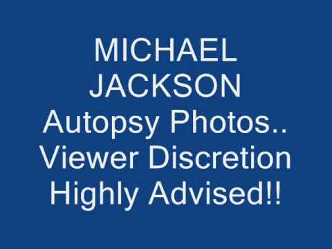 Michael jackson autopsy pictures leaked