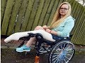 Hope Gordon 21 Cuts Off Leg After Raising Enough Money For The Surgery That Doctors Refused