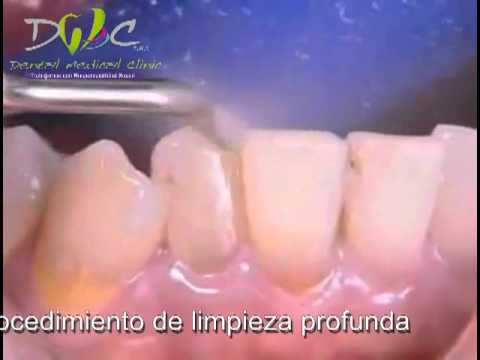 Limpieza dental con ultrasonido Dental Medical Clinic