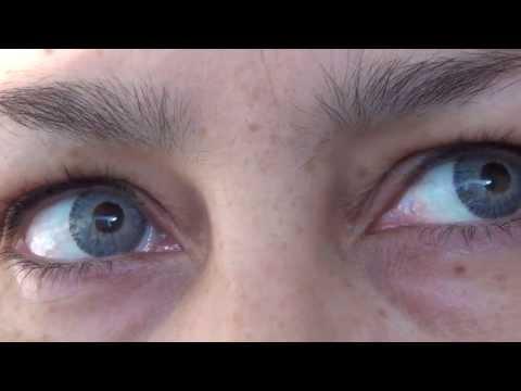 Mi visión acerca de las cirugias para cambiar el color de los ojos .- JoLens