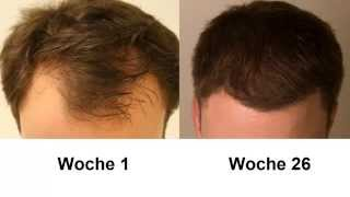 26 j hriger patient spricht ber seine haartransplantation moser medical haare statt glatze. Black Bedroom Furniture Sets. Home Design Ideas