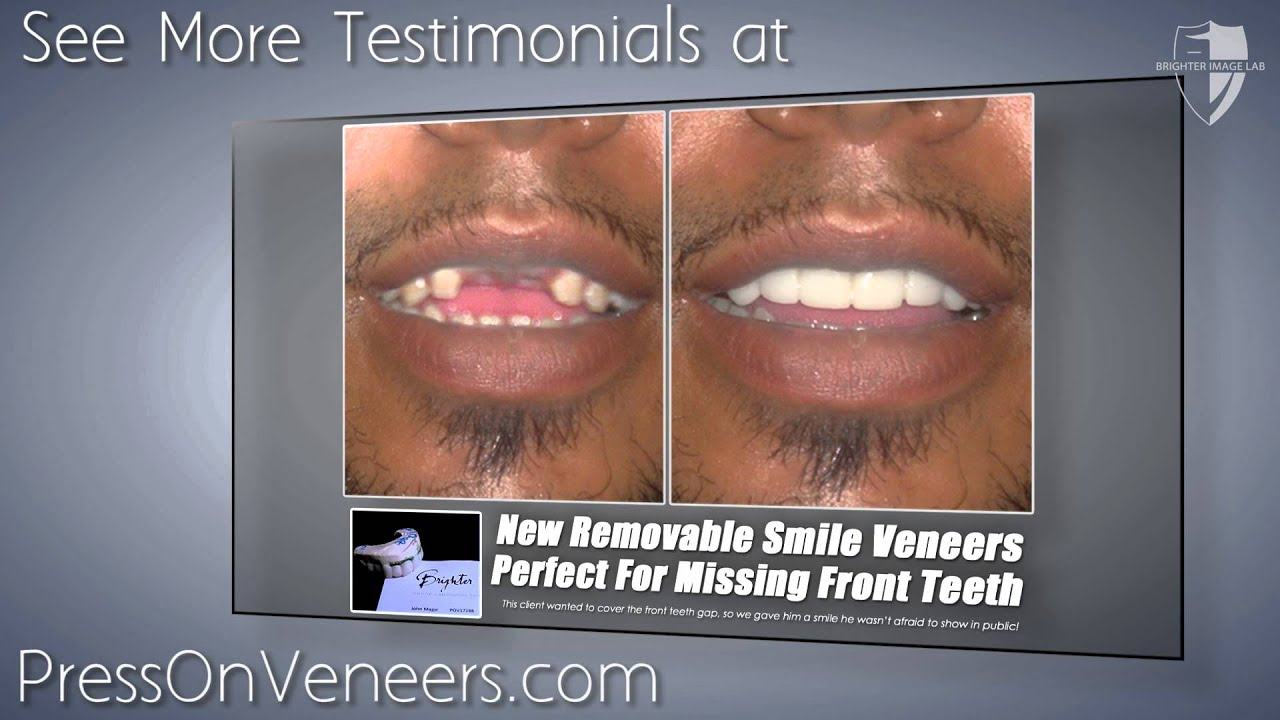 Press On Veneers Perfect For Missing Front Teeth Youtube