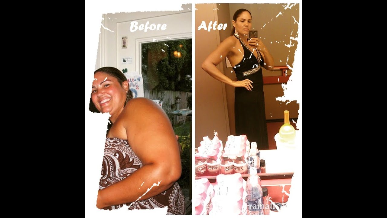 Before & After Gastric Sleeve - YouTube