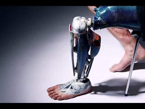 Alternative Limb Project