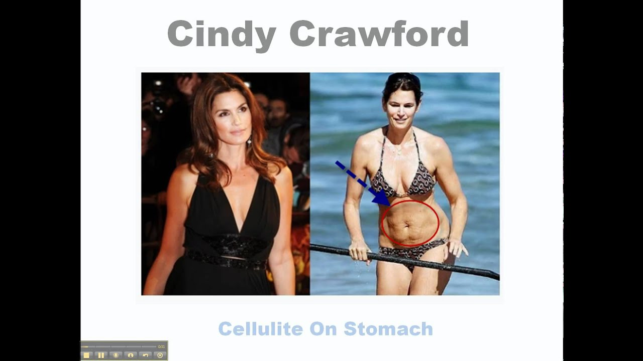 Young celebrities with cellulite