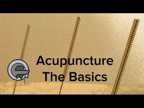 Acupuncture treatment - the basics