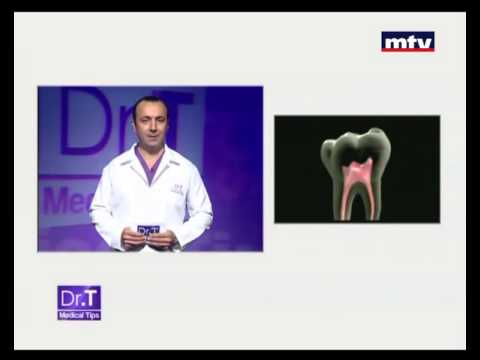 Dental Abscess Beirut Lebanon -  Dr T Medical Tips