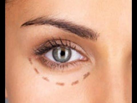 Blefaroplastia - Operación para las bolsas de los ojos