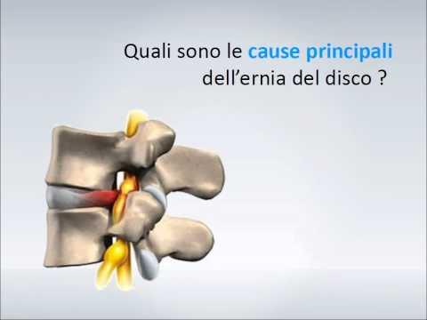 Ecco come alleviare il dolore dell'ernia del disco