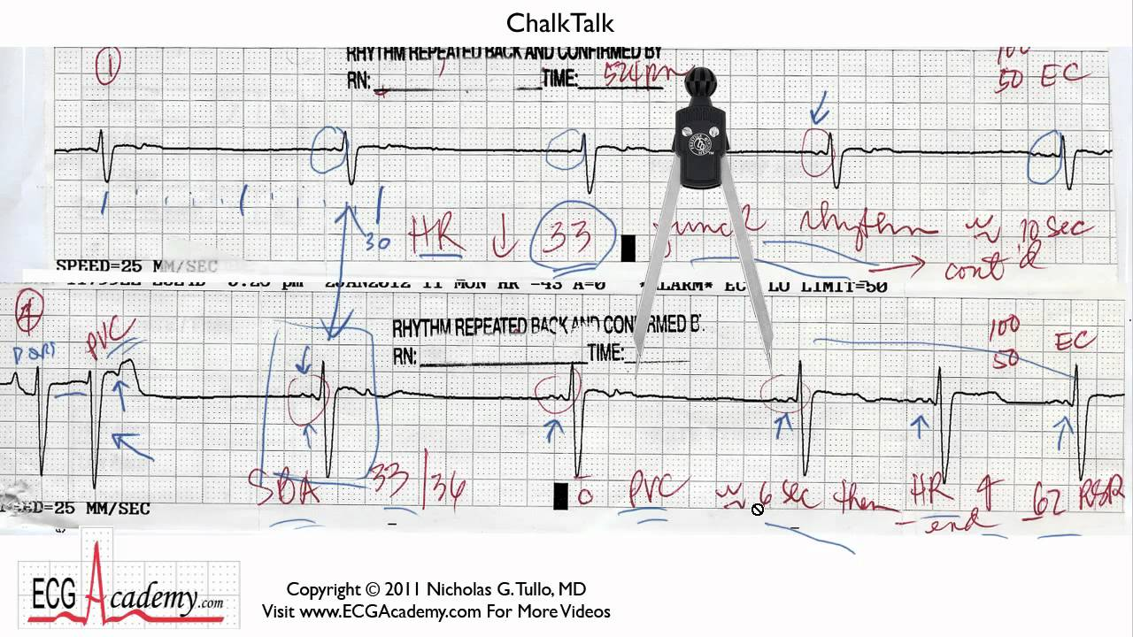 ecg interpreation The ekg leads the 12-lead ekg will be discussed in greater detail later in this course however, at this time we will present an introduction to the ekg leads simply to help explain the.