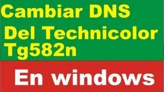 Cambiar Dns Technicolor TG582n Windows Change Dns
