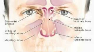 How To Get Rid Of A Sinus Infection Home Remedies For