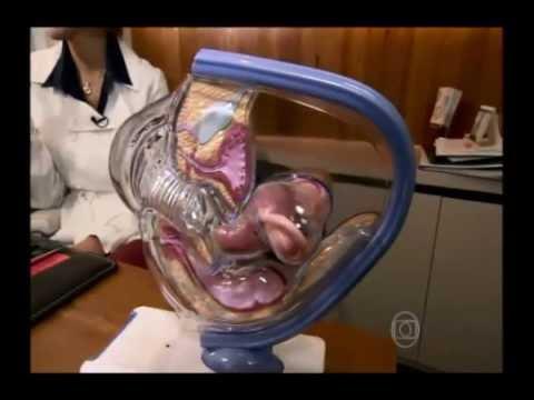 Programa: Bem-Estar Globo - Transplante Uterino