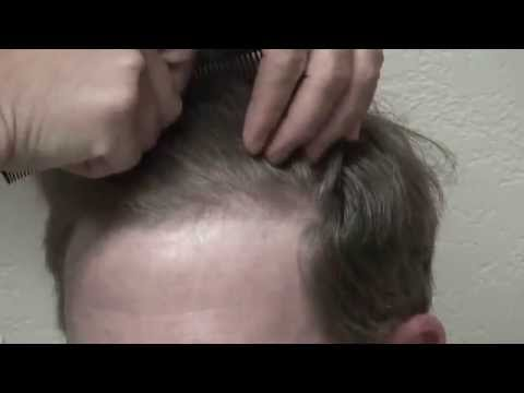 Caucasian Man Hair Loss Surgery Norwood 4 Frontal Hair Loss Restoration Dr. Diep www.mhtaclinic.com