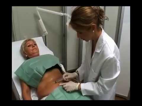 Tratamientos Corporales   MESOTERAPIA CORPORAL   Institut Dra  Natalia Ribé