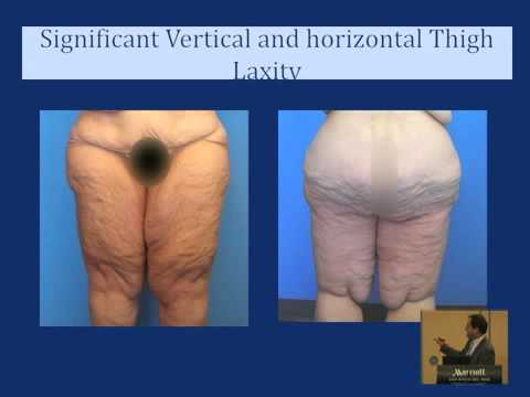 Thigh Lift: Plastic Surgery After Weight Loss - YouTube