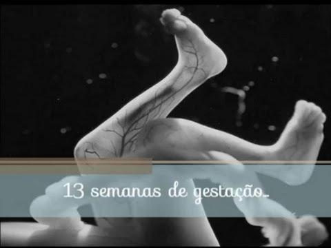 ULTRA 13 semanas - Translucência Nucal