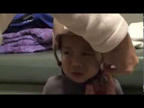 Medical helmet o protect skulless brain