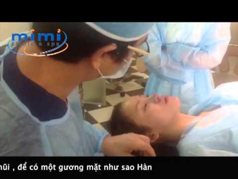 Ba Tung Phau thuat tai mimispa