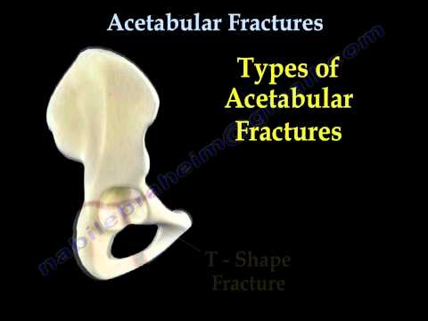 Acetabular Fractures - Everything You Need To Know - Dr. Nabil Ebraheim