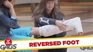 Skryt� kamera: Pomoc so zlomenou nohou