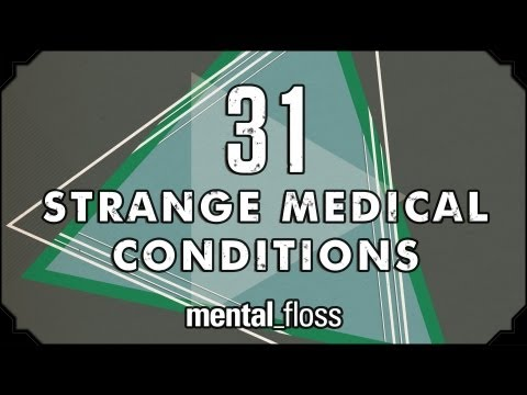 31 strange medical conditions