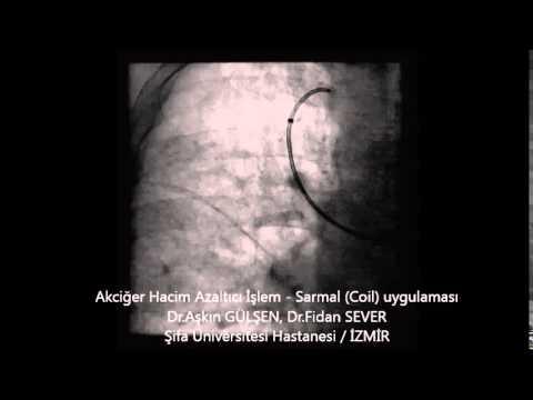 KOAH'ta Akciğer Hacim Azaltılması,Akıllı Tel Uygulaması