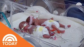 Parents Who Lost 2 Triplets Live With Love And Loss: 'I Think Of Them Every Day' | TODAY