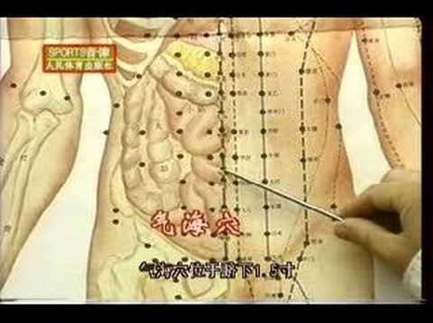 Acupuncture DVD, Chinese Medicine, English Subtitled