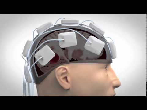 Strokefinder Microwave Helmet Diagnoses Strokes Right in the Ambulance