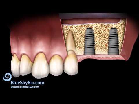 Patient Treatment Videos: Sinus Lift Lateral