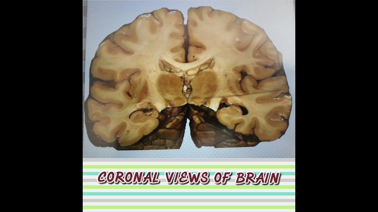 Coronal brain anatomy