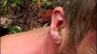 MAGGOTS In His Ears!