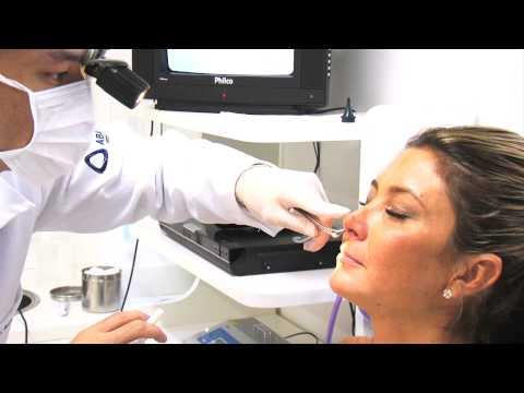 Exame: Videonasofibroscopia - Dr. Gustavo Passerotti