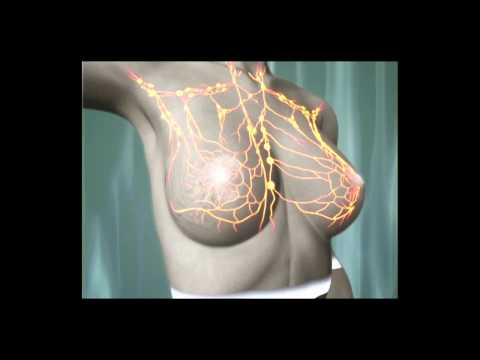 Nosotras - ¿Qué es el cáncer de mama?