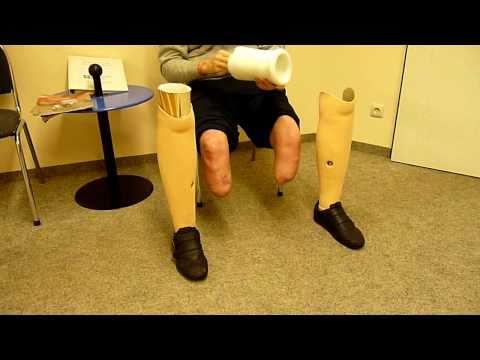 Beide Beine amputiert gehen mit Prothesen