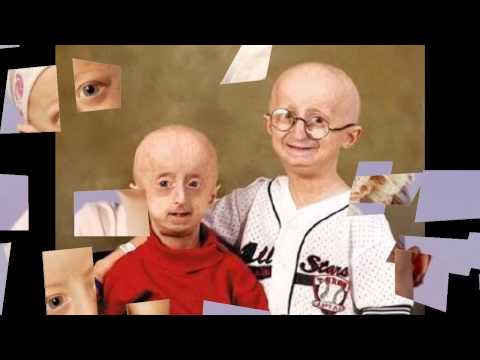 progeria essays What is progeria progeria is a rare disorder of childhood that is known by rapid growth of the physical changes, typical seen in old age usually resulting in death.