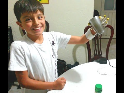 Prosthesis Hand boy 10 years old Bogota, Colombia