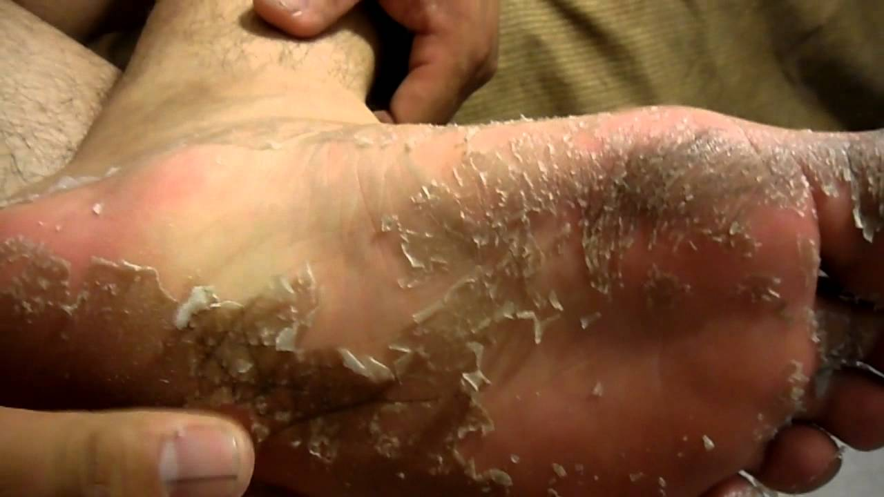 does psoriasis